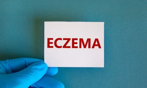 Presentation Suggests Racial Disparities Among Kids with Eczema