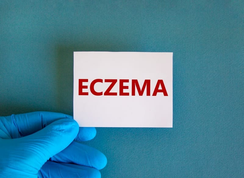 Gene for Sex Hormone Synthesis Could Play Key Role in Eczema