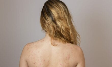 Why More People Are Getting Body Acne Than Ever