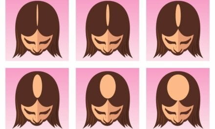 Follica Announces Pilot Study for Female Pattern Hair Loss