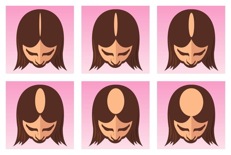 Follica Announces Pilot Study for Female Pattern Hair Loss