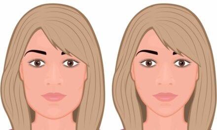 Genioplasty: Overview