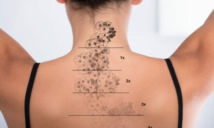 Fundamental Principles for Laser Tattoo Removal