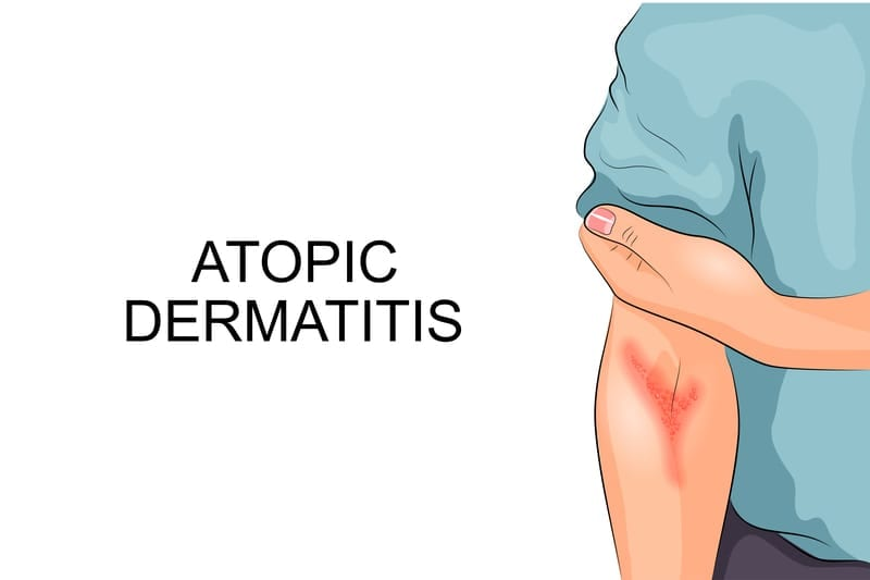 Discovery Pinpoints New Therapeutic Target for Atopic Dermatitis