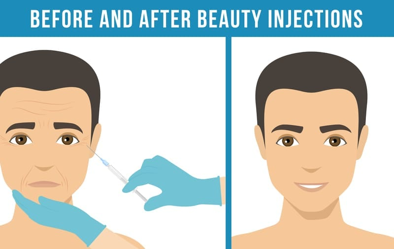 Why Men Are Starting To Get Fillers