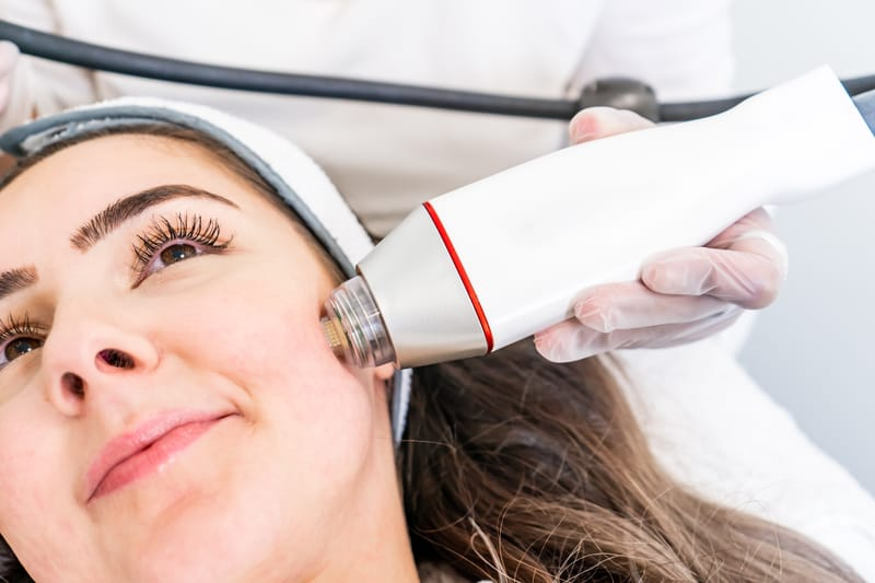 All About Radiofrequency Microneedling