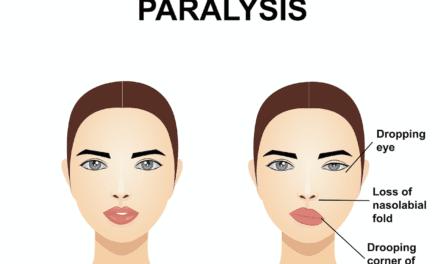 Ohio Plastic Surgeon Performs Area's First Facial Reanimation Procedure