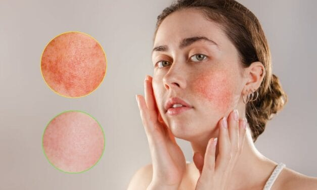 COVID-19 Mask Wearing Could Be Worsening Rosacea