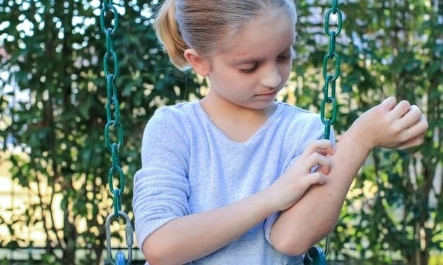 Characterizing Pollen Season Flares in Children With Atopic Eczema