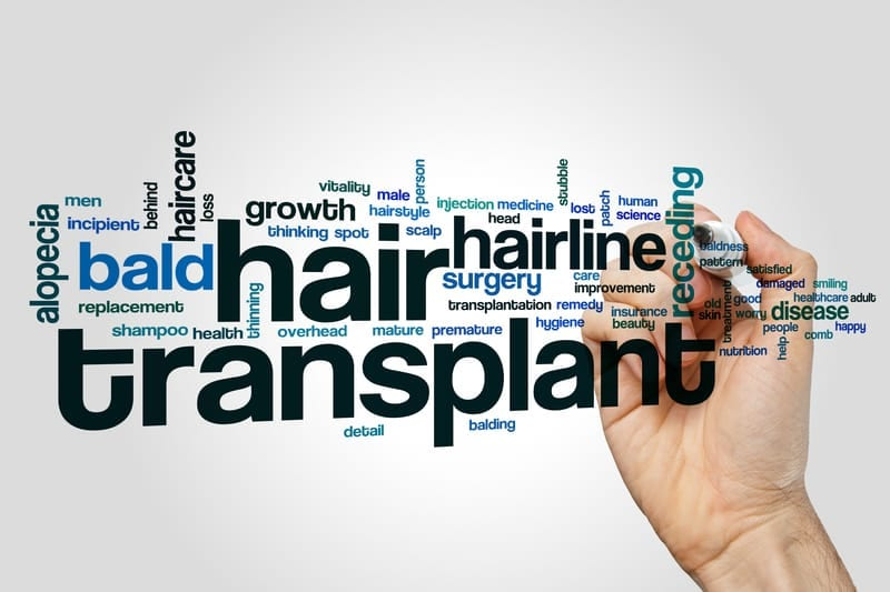 Losing Strands? Get Natural-Looking Results With Hair Transplant Surgery