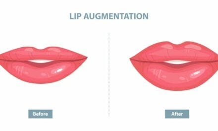 What Exactly Is a Lip Lift? Plastic Surgeons Explain