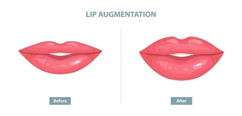 What Exactly Is a Lip Lift? Plastic Surgeons Explain