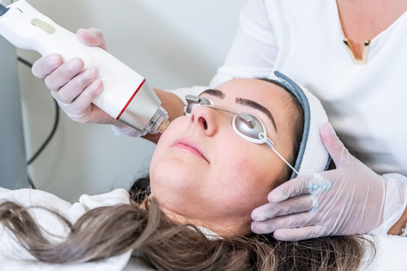 Everything You Need to Know About Radiofrequency Microneedling for Acne Scars