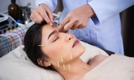 Going Under the Needle: Is Cosmetic Acupuncture the New Botox?
