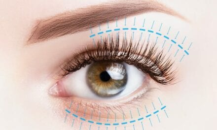Everything You Need To Know About An Upper Eyelid Lift