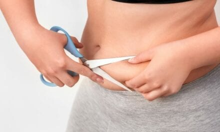 Practical Tips for Treating Excess Skin and Fat Above Your Waist