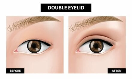 What Are Double Eyelids?
