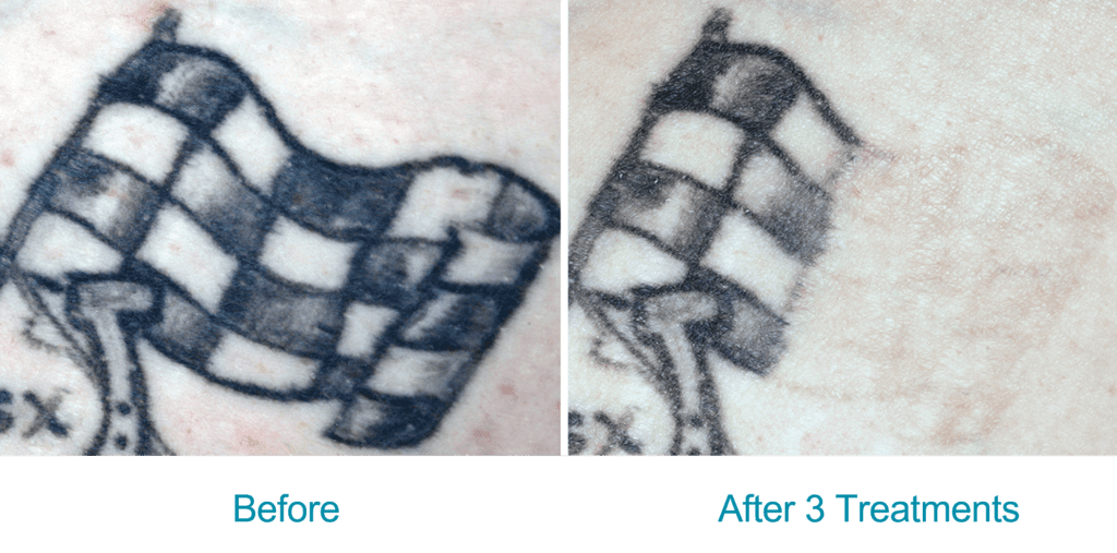 resonic-for-tattoo-before-after