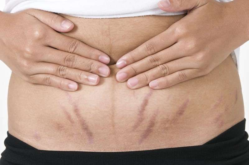 Stretch Marks? The Science Behind The Cause And How To Treat Them