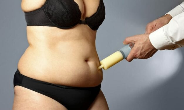 Why It Can Take Up to Six Months to be Bikini-Ready After Liposuction