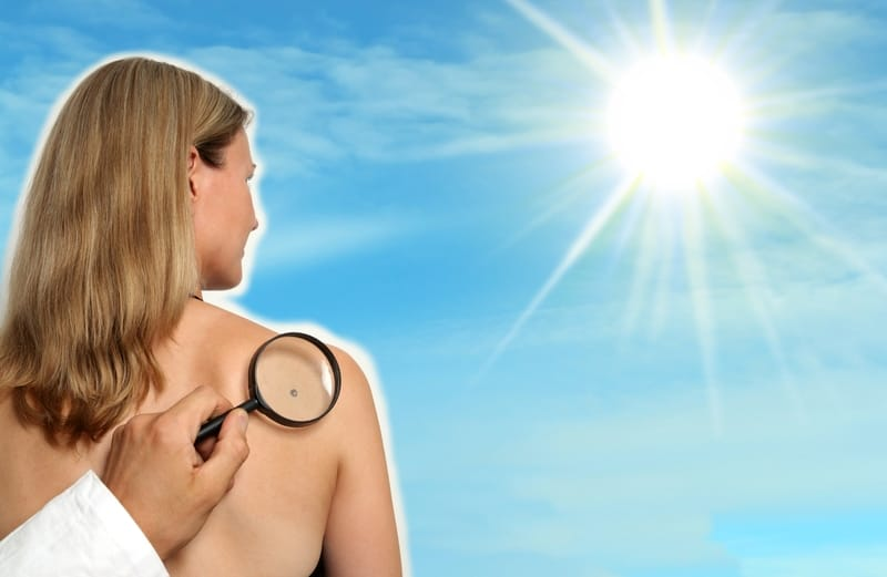 Only a Third of Americans are Concerned About Skin Cancer Despite Nearly 70% Having at Least One Risk Factor