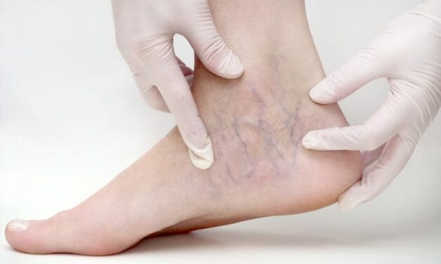Your Minimally-Invasive Options For Spider Vein Treatment