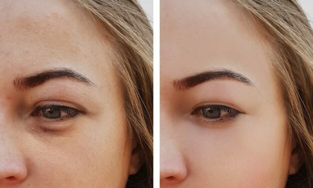 What It's Like to Get Under-Eye Filler—And What To Know Before You Book an Appointment