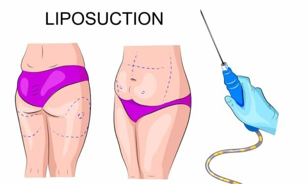 The Curious Science of Liposuction: Why, Exactly, Can't Doctors Just Remove All of My Fat?