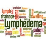 What You Need to Know About Lymphedema