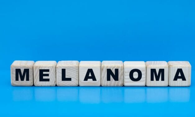 Cell-Based Immunotherapy Shows Promise Against Melanoma