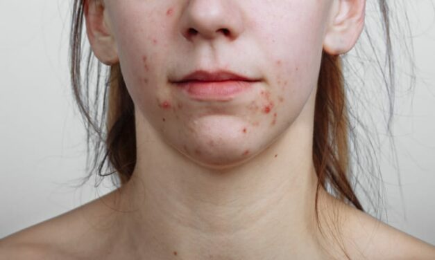 Acne Can Take Big Emotional Toll on Women