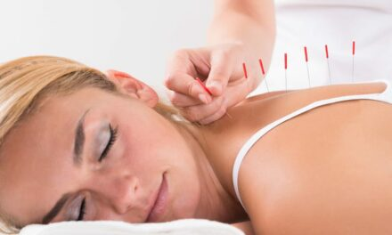 Getting 'Acu-Stoned' Is a Real Thing, According to Acupuncturists