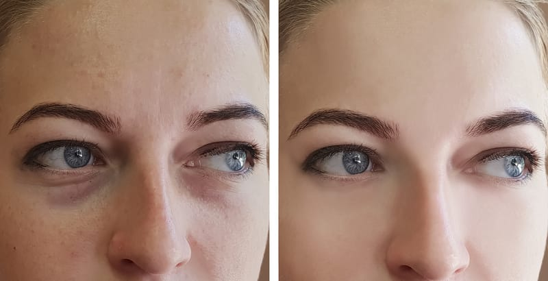 The Right Way To Get Rid Of Sunken Eyes, According To A Dermatologist (It's Not Botox!)