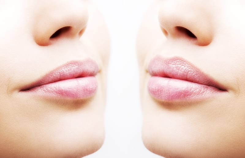 All Your Lip Filler Questions, Answered
