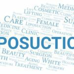 What is Tumescent Liposuction?