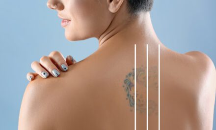 National  Tattoo Removal Day is August 14