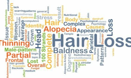 Low-Level Laser Therapy for Hereditary Hair Loss