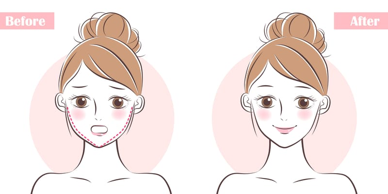Eight Ways To Achieve A Beautiful Jawline, Minus the Surgery