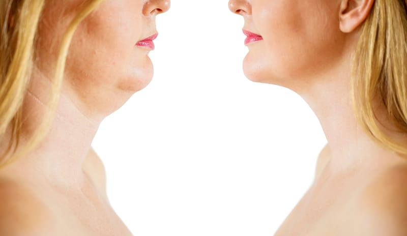 All The Secrets You Need to Know For Eliminating a Double Chin