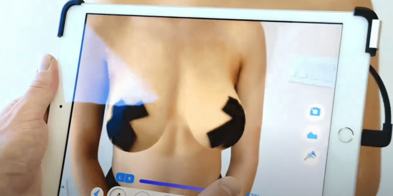 Setting Breast Augmentation Expectations: New Software Helps Patients Preview Their Post-Surgery Appearance