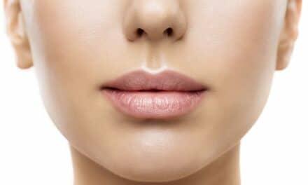 5 Signs of a Stellar Lip Lift, According to Facial Plastic Surgeons