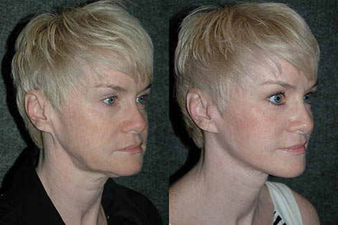 Extended Deep Plane Facelift Patient Before & After: This middle aged woman had an extended deep plane facelift procedure performed by Dr. Andrew Jacono, which included the restoration of the extended arc of a youthful jawline. (Image courtesy of New York Center for Facial Plastic & Laser Surgery)
